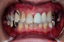 盛岡 義歯