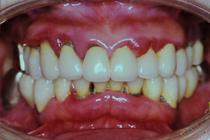盛岡 歯周病治療