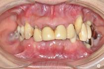 盛岡 歯周病