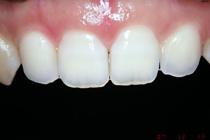盛岡 歯科