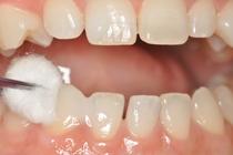 成人を対象とした矯正歯科・審美歯科・歯周病治療などさらに良質な治療を求める患者さんに対応しております。お気軽にご相談下さい。盛岡 歯科 岩手県盛岡市安藤歯科医院。