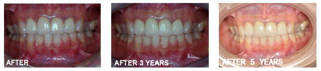 予防歯科,予防治療,定期健診,盛岡
