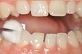 盛岡 歯科 予防歯科 定期健診