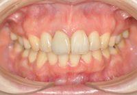 4本抜歯 全顎矯正後 オールセラミック
