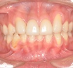 審美歯科治療 | ラミネートべニアとオールセラミックでの治療