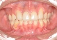 盛岡,歯肉切除,歯周病