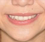審美歯科治療 | 前歯部の空隙をオールセラミック歯で埋める審美補綴治療