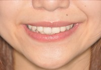 盛岡,審美歯科,セラミック,オールセラミック,e-max