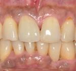 歯周治療+審美補綴治療