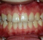 矯正歯科・小矯正治療 | 矯正歯科・小矯正治療 ケース2/