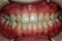 短期間での抜歯・部分矯正・補綴治療,盛岡