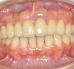矯正歯科・小矯正治療 | 部分矯正・補綴治療