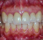 矯正歯科・小矯正治療 | 部分矯正・歯肉形成・補綴治療