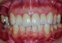 部分矯正,歯肉形成,補綴治療,盛岡