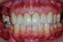 盛岡 安藤歯科 部分矯正 歯肉形成 補綴治療 盛岡