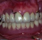 矯正歯科・小矯正治療 | 部分矯正後に補綴・義歯治療