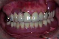 メタルオクルーザルの上顎金属義歯