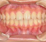 矯正歯科・小矯正治療 | 4本抜歯全顎矯正