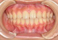 4本抜歯全顎矯正,盛岡
