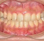 矯正歯科・小矯正治療 | 難症例・抜歯全顎矯正治療