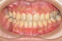 難症例・抜歯全顎矯正治療,盛岡