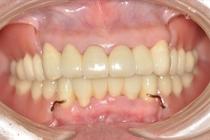 歯周病治療から審美義歯