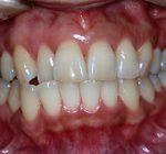 歯周病治療 | 歯周病基本治療