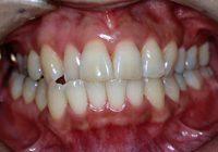 中程度歯周病治療,盛岡