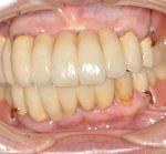 歯周病治療から審美補綴・審美義歯