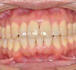 歯周病治療 | 中程度歯周病治療