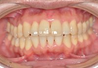 中程度歯周病治療