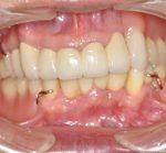 重度歯周病治療・咬合崩壊から審美補綴・義歯治療