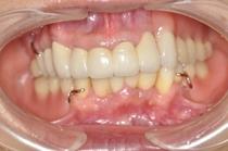 盛岡 安藤歯科 重度歯周病治療・咬合崩壊から審美補綴・義歯治療