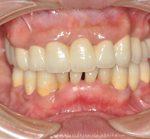 重度歯周病治療・オールセラミック・審美歯科治療