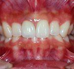 盛岡 安藤歯科 正中1歯セラミック治療