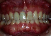 盛岡,歯肉形成 修復治療 セラミック治療