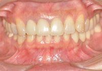 盛岡,全顎審美歯科治療