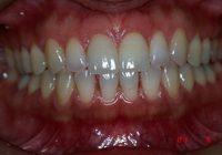 盛岡,正中離開に対応した前歯部ラミネートべニア治療