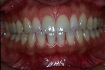 盛岡 安藤歯科 正中離開に対応した前歯部ラミネートべニア治療