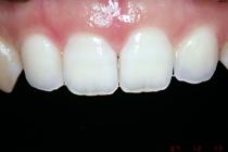 盛岡 安藤歯科 矮小歯 前歯部プロポーションに対応したオールセラミック治療