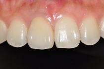 盛岡 安藤歯科 正中離開を1歯で対応したオールセラミック治療