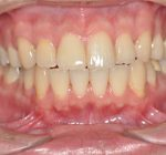 審美歯科治療 | 正中1歯オールセラミック治療