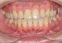 盛岡,正中1歯オールセラミック治療