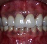 審美歯科治療 | 複数の歯冠空隙に対応したセラミック治療