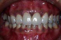 盛岡,複数の歯冠空隙に対応したセラミック治療