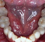 審美歯科治療 | 臼歯部審美歯科治療 セラミック治療
