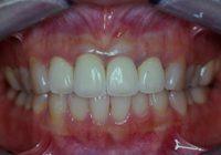 盛岡,前歯部セラミック治療 長期経過