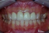 盛岡 安藤歯科 前歯部セラミック治療 長期経過