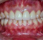 審美歯科治療 | セラミック治療 長期経過症例