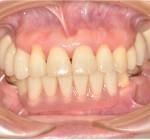 上顎前歯部矯正治療のみ重度の歯周病治療,盛岡